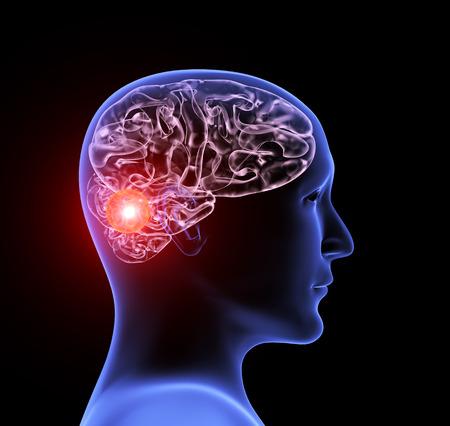 Kopfschmerzen migräne. Menschliches Röntgenprofil mit Gehirn, Schmerzstelle rot hervorgehoben. Auf schwarzem Hintergrund isoliert. 3D-Rendering Standard-Bild
