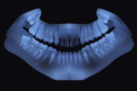 Panoramic dental X-Ray. Vector illustration Vector