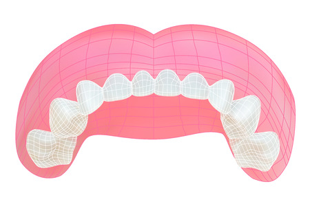 jaw: Teeth of the upper jaw.  Illustration
