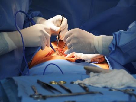 quirurgico: Intervención quirúrgica Foto de archivo