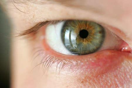 shortsightedness: Green eye a large kind