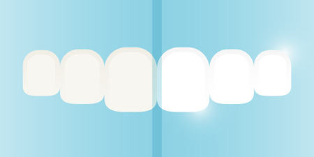 buccal: Teeth whitening