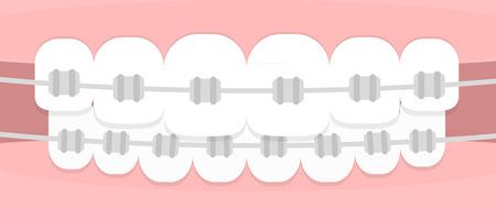 orthodontist: Teeth braces. Flat illustration Illustration