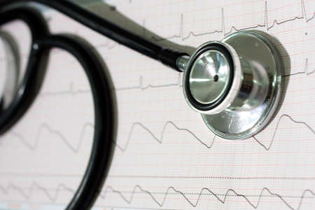 Stethoscope on a ECg curve background Stock Photo
