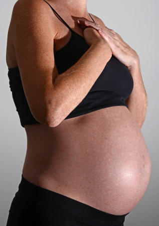 acid reflux: acid reflux or heartburn and pregnancy Stock Photo