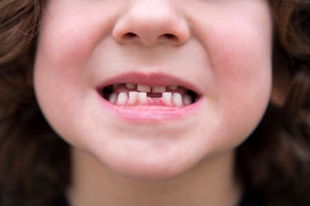 mouth of a small child who has moved a baby tooth and is growing the tooth Standard-Bild