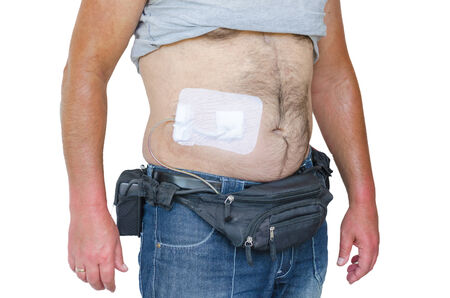 Man with a assist devices, artificial hearts, LVAD, left or right ventricular assist device, control unit batteries and power cable.