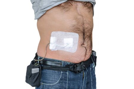 implanted: Man with an assist devices, artificial hearts, LVAD, left or right ventricular assist device, controller batteries and power supply cable. Stock Photo