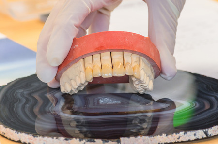 higiene oral: Pr�tesis dentales, pr�tesis y la higiene bucal. Las manos con guantes al trabajar con una pr�tesis dental.