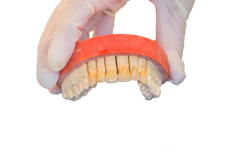 higiene bucal: Pr�tesis dentales, pr�tesis y la higiene bucal. Las manos con guantes al trabajar con una pr�tesis dental.