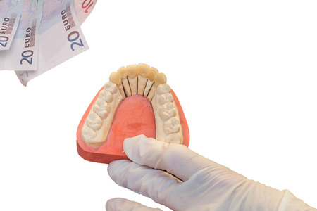 artificial teeth: Denture and euro bills, a focus on the artificial teeth. Symbol of high dentures cost.