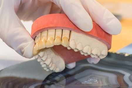 Dentures, prosthesis and oral hygiene. Hands with gloves while working on a dental prosthesis.