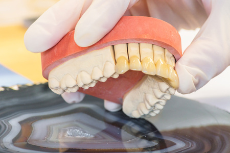esthetics: Dentures, prosthesis and oral hygiene. Hands with gloves while working on a dental prosthesis.