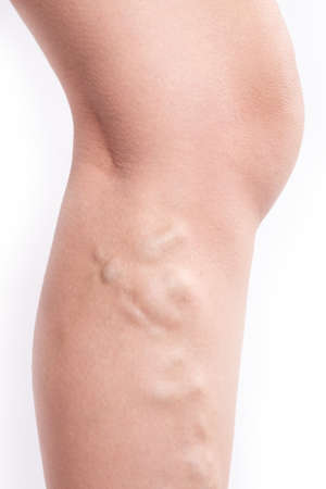 varicose veins in a woman's leg close-up isolated on white background. 免版税图像