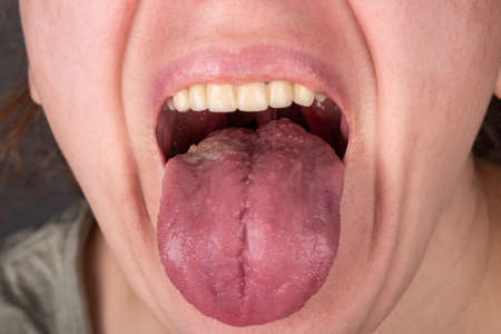 stomatitis inflammation of the tongue, cancer of the tongue Banque d'images