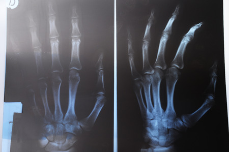 thumb x ray: Close up of radio of hand and fingers