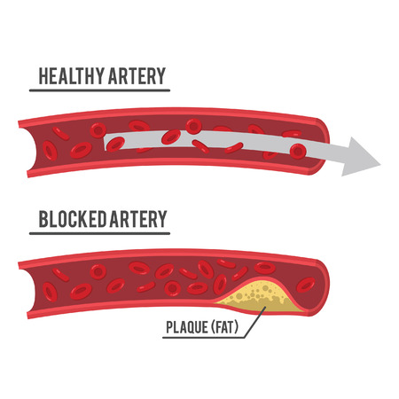 healthy artery and blocked artery