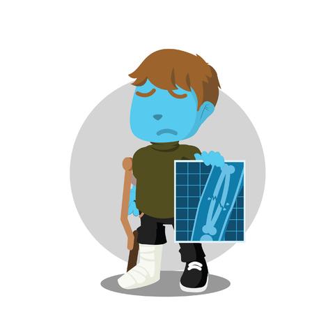 Boy with broken leg showing his x-rayt result– stock illustration Illustration