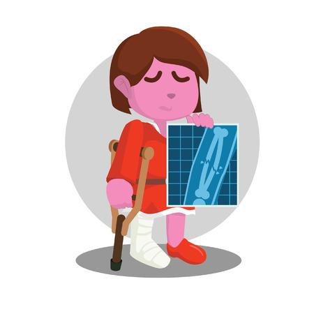 Little girl broken leg showing his x-ray result– stock illustration Illustration