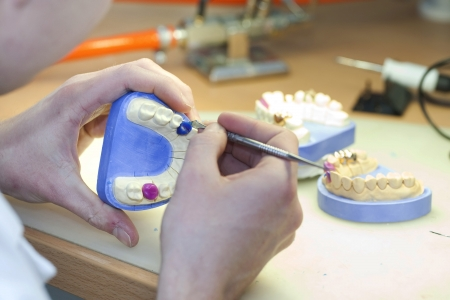 implants: Dental Laboratory - teeth prosthetics Stock Photo