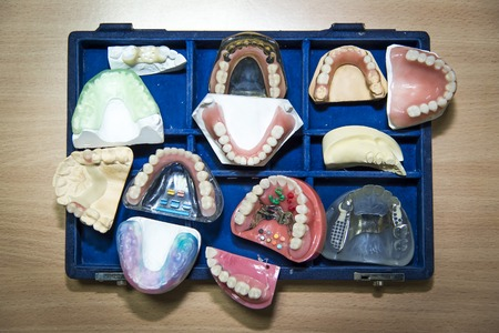 artificial teeth: Suitcase full of prosthetic equipment - artificial teeth