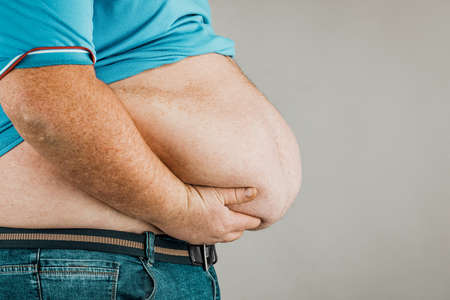 Overweight of a persons body with hands touching the abdomen. The concept of obesity.