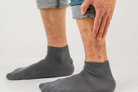 Close-up of the legs of a man suffering from chronic psoriasis on a white background