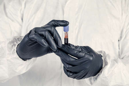 A test tube in a man's hand close-up , a man in a medical mask holding a bottle of red liquid. Concept of blood samples , medical and chemical research.