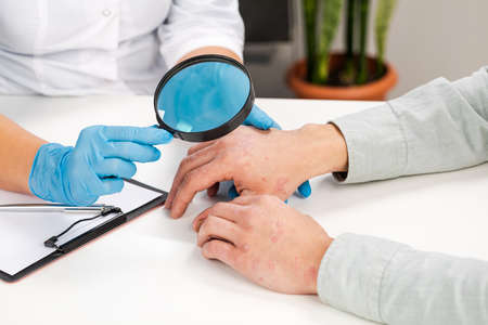 A dermatologist wearing gloves examines the skin of a sick patient. Examination and diagnosis of skin diseases-allergies, psoriasis, eczema, dermatitis.