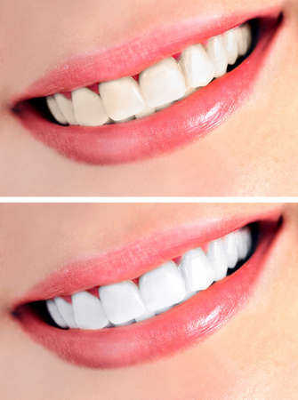 Healthy teeth and smile photo