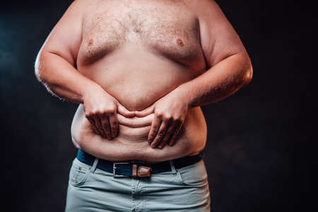 Chubby men holding excessive belly fat, overweight unhealthy concept