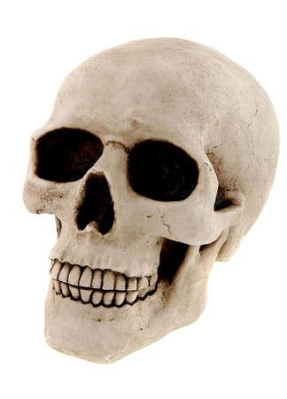 dientes con caries: Cr�neo humano aislado en un fondo blanco Foto de archivo