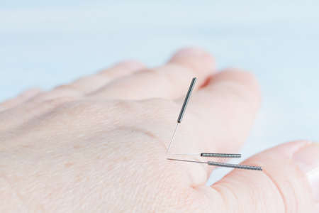 Female hand in a session of acupuncture therapy Stock Photo - 27255240