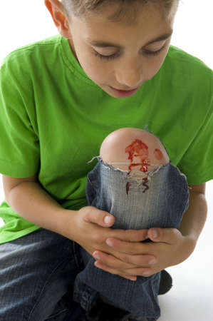 a young boy with a painful leg on white Stock Photo