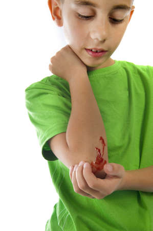wound care: a young boy with a painful elbow on white