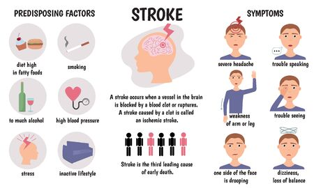 Stroke medical infographic. Stroke symptoms and causes. Vector illustration.  イラスト・ベクター素材