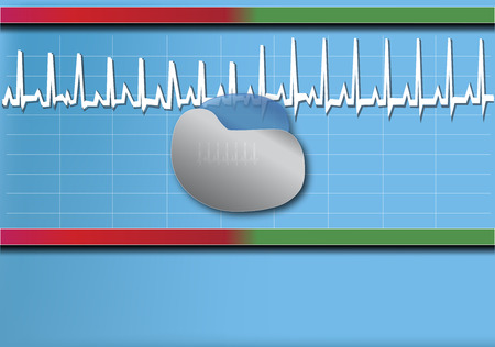 healt: The Pacemaker Illustration