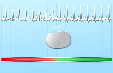 pacemaker: The Pacemaker Illustration