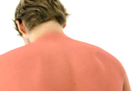 Sunburned male back. Isolated over white background.