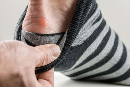 friction: Man with a blister on his heel lifting down his sock to reveal the raw red patch of rubbed skin.