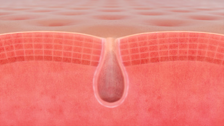 3D illustration of a skin pore