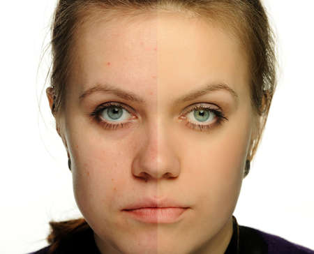 retouched: Retouch of a female portrait. Correction face women, an example usual and retouched