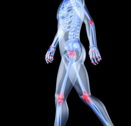 osteoporosis: Esqueleto del hombre con los centros de los dolores de las articulaciones. 3D la imagen del esqueleto de un hombre bajo un aspecto transparente