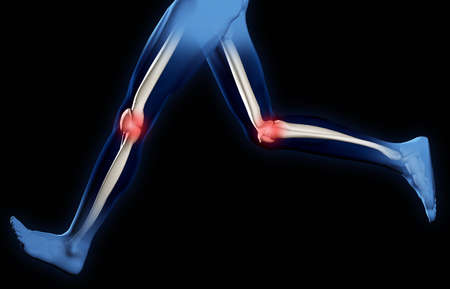 shin bone: Pain in knee joints. A X-ray of feet of the man. It is isolated on a black background Stock Photo
