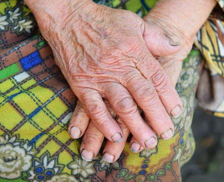 limosna: Las manos de la anciana - 85 años de edad. 70 años trabaja en la granja colectiva. Rusia.
