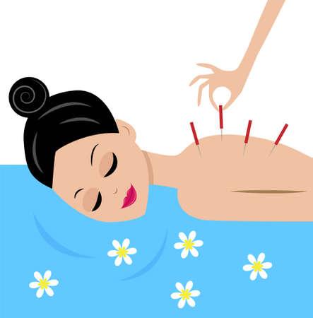 mujer joven acepta procedimiento de acupuntura, ilustración vectorial