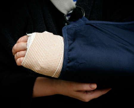 broken arm: Broken arm