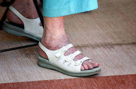 Fit of elderly woman with varicose photo