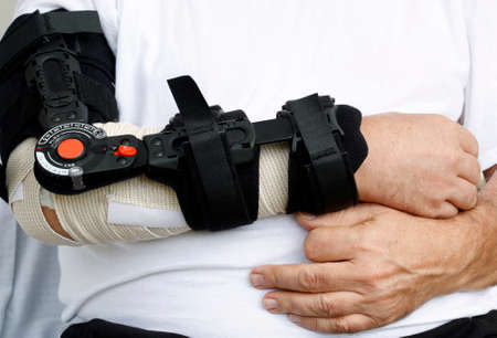 elbow band: Mans broken arm in modern hospital equipment Stock Photo