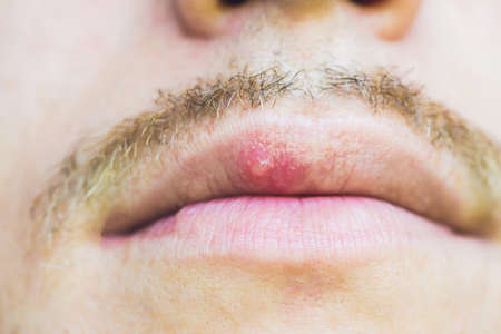 Virus herpes infected on male lip, closeup.